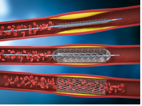 angioplastia_coronaria