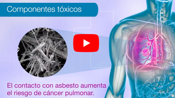 programa-deteccion-cancer-de-pulmon