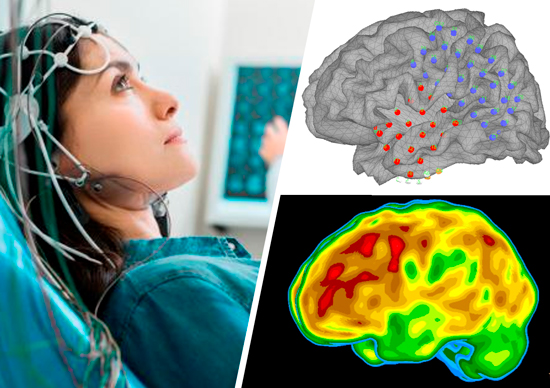 programa-epilepsia-uc